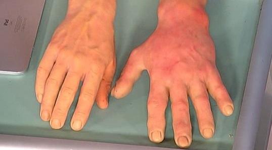 lechim-xolodovuyu-allergiyu