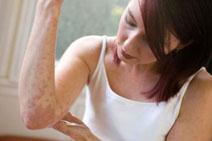 Лечение аллергических экзем требует тщательного соблюдения времени приёма и количества используемых отваров.